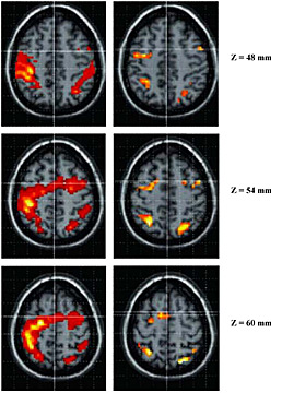 A comparison of the frontal and parietal activation in music performance (left) and music imagery (right)