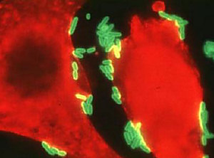 Proteus bacteria (in green)